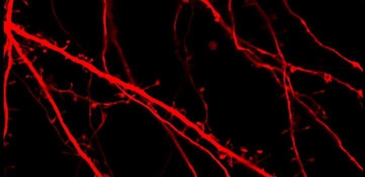 Laktat löst Gene, die die Aktivität des Gehirns ändern