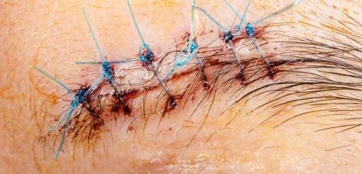 Mutationsgen: Patientin hat eine extrem schnelle Wundheilung und keine Schmerzen