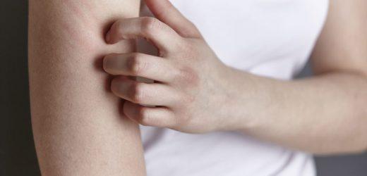 Neuer Therapieansatz soll bei Neurodermitis helfen