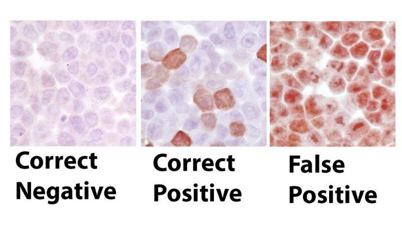 Forscher finden weit 'inkonsistent' Einsatz von Antikörpern im Labor Experimente