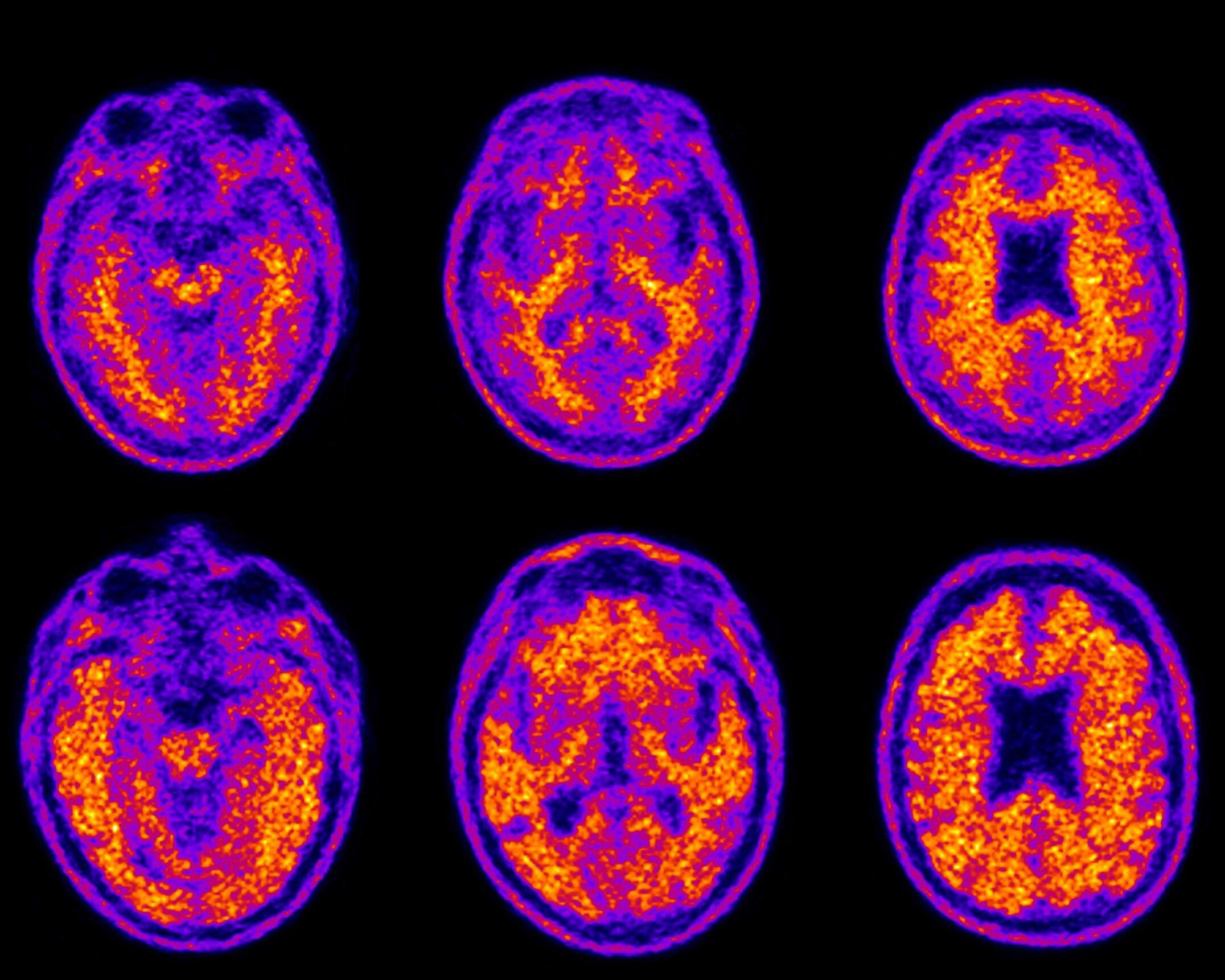 Wie plaque-Ablagerungen erhöhen den Alterungsprozess des Gehirns, Geld-management versagt