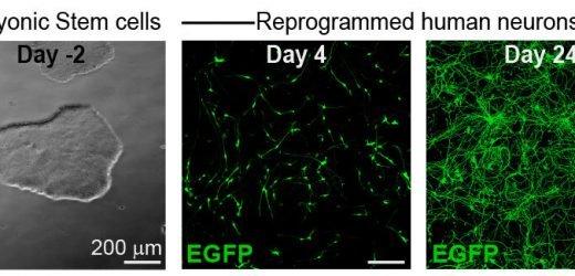 Stammzellen umprogrammiert, die in Neuronen konnte zeigen, Medikamente schädlich für die Schwangerschaft