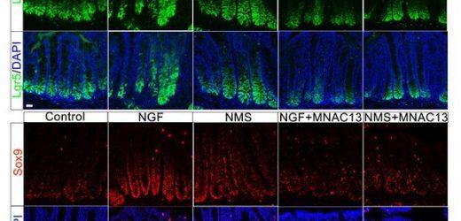 Forscher entdecken Mechanismen der frühen Leben stress und Reizdarm-Syndrom