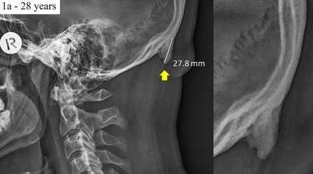 Studie zeigt seltsames Horn am Schädel bei jungen Menschen – sind Smartphones schuld?