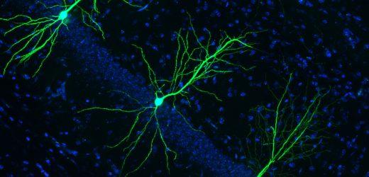 Neues Ziel für eine medikamentöse intervention bei der Alzheimer-Krankheit identifiziert