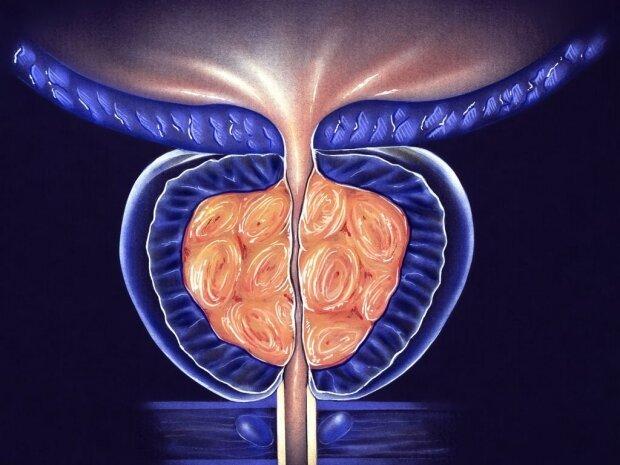 Zwei Gene, die verwickelt in der Entwicklung von Prostata-Erweiterung