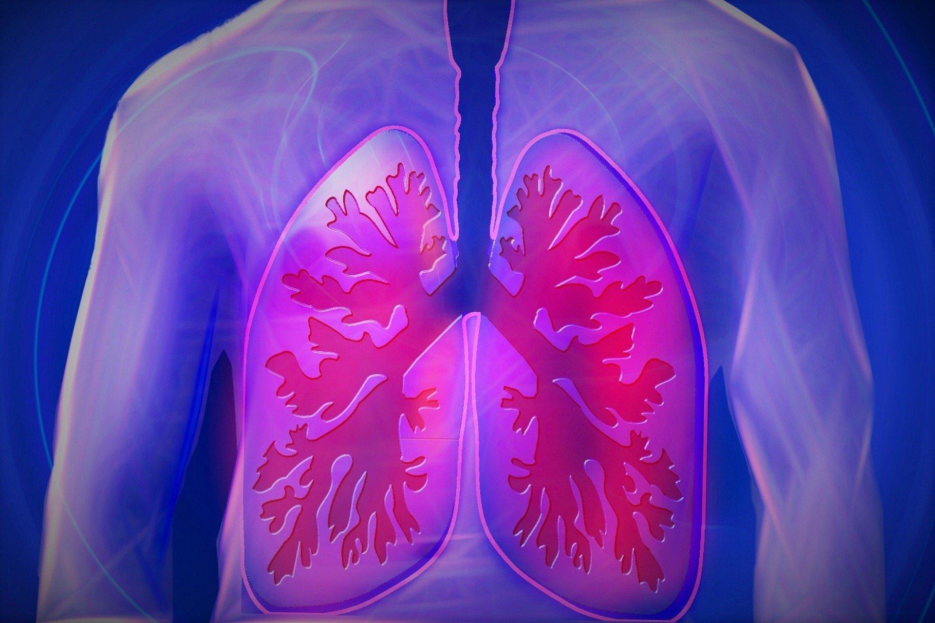 Wackelige Gerüst änderungen Lungen-Infrastruktur