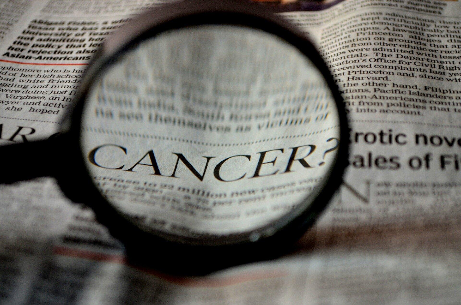 Immun-Zell-Therapie zeigt frühe Versprechen für Patienten mit Bauchspeicheldrüsenkrebs