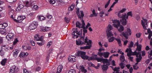 Ähnlichkeiten kleine Zelle Krebs zu Blutkrebs führen könnte, um Behandlungen besser