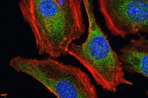 Wissenschaftler zeigen, wie ein defektes gen führt zu Nierenerkrankungen