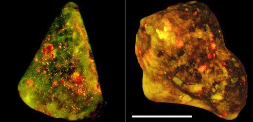 Immunzellen Laufwerk Gallenstein-Bildung
