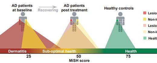 Wissenschaftler nutzen das Haut microbiome zu entwickeln, Gesundheits-index für Kinder mit Neurodermitis