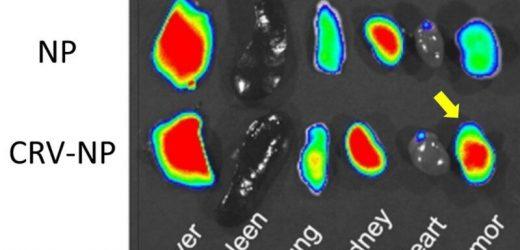 Tumor-Makrophagen-marker bietet ein einzigartiges Ziel für die Behandlung