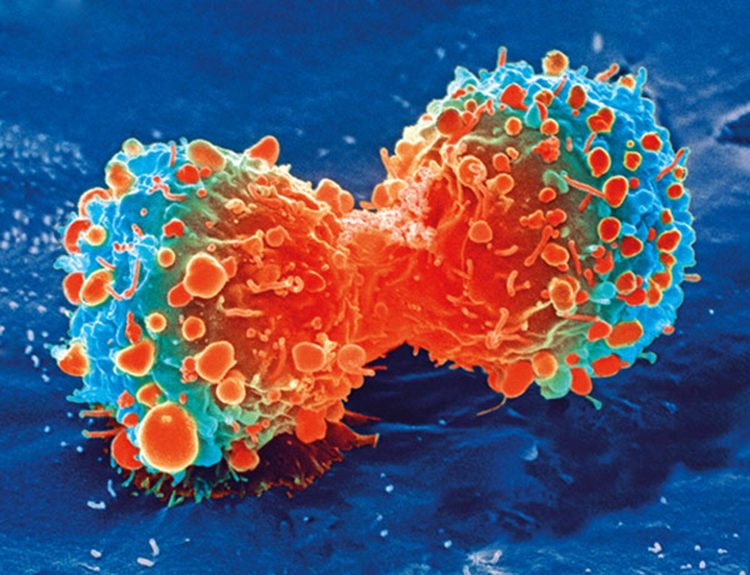 Große Lücken bestehen bei den Patienten das Verständnis der genomischen test-Ergebnisse, Lungen-MAP-Studie zeigt