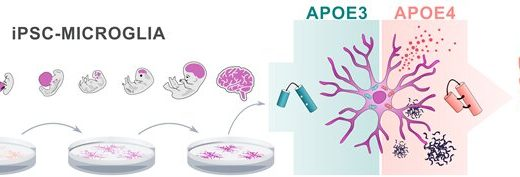 Alzheimer-risikogens APOE4-beeinträchtigt die Funktion von Gehirn, immun-Zellen