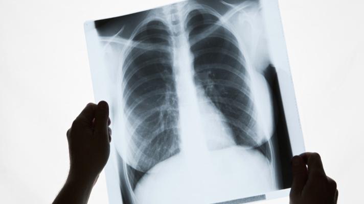 FDA clears GE Healthcares AI-Plattform für X-ray-scans