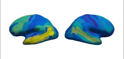Wie ist die Bedeutung dargestellt, die in das menschliche Gehirn