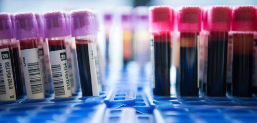 Umstrittener Trisomie-Test wird Kassenleistung: Das müssen Sie über die Untersuchung wissen