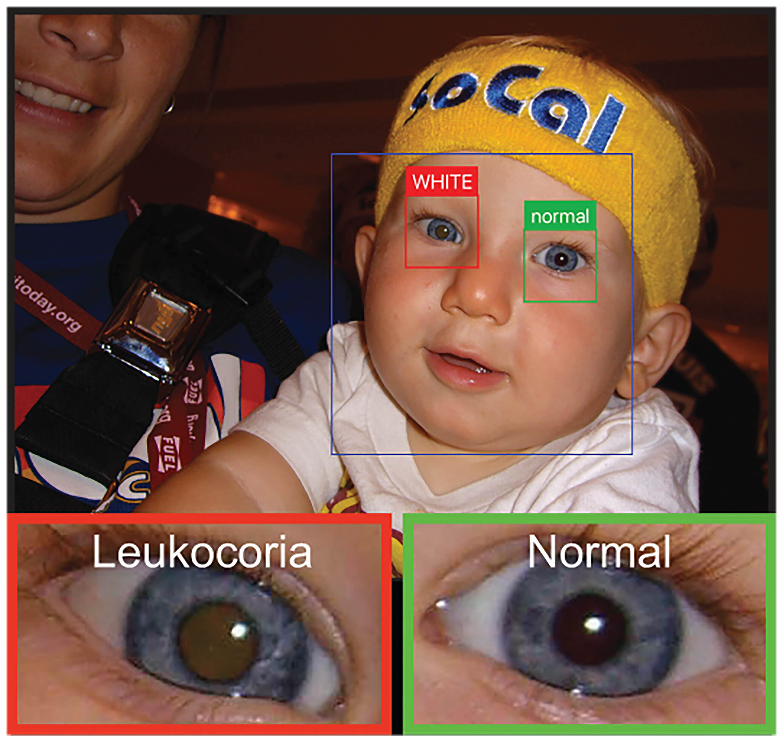 App kann erkennen', weißes Auge' in der Kinder-Fotos, um vor Ort mögliche Probleme