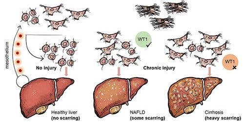 Zelle Familie von Bäumen verfolgt zu entdecken, Ihre Rolle im Gewebe Narben und Erkrankungen der Leber
