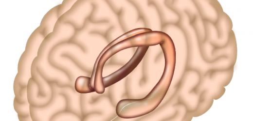 Sex-basierte Unterschiede in der Entwicklung der Gehirn-hubs beteiligten in Erinnerung und emotion