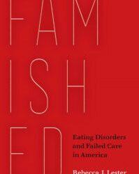 Neues Buch untersucht die Essstörungen, das Versagen der Fürsorge für die betroffenen