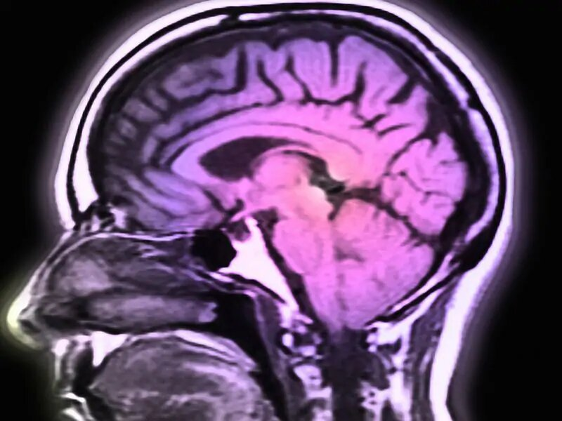 Sehnerv-Ultraschall-ID erhöhter intrakranieller Druck