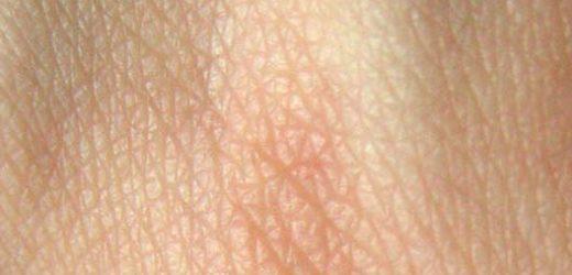 Computer-Simulationen helfen, die medizinische Behandlung für die Bedingungen der Haut