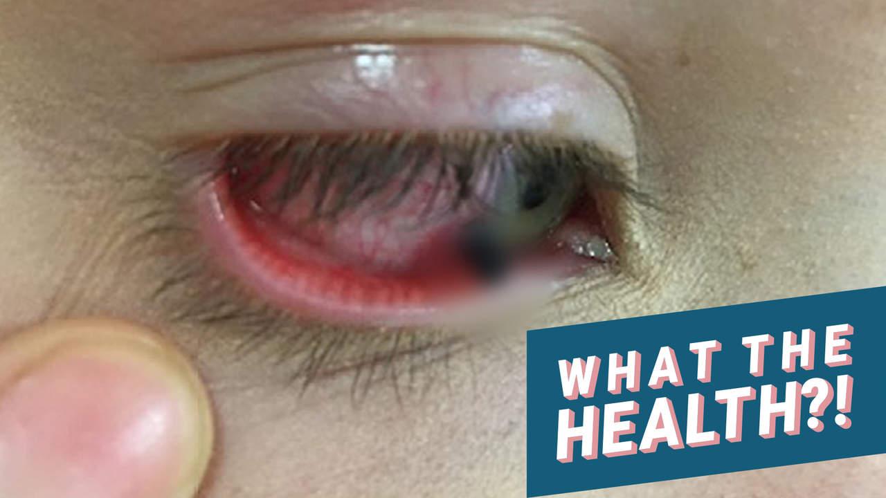 Grafik Foto Zeigt die Mädchen Mit Blei Eingelegt in Ihrem Auge, Nachdem ein Klassenkamerad Warf ein Bleistift, der an Ihr