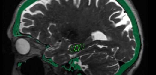 Fokussierter Ultraschall kann die Tür öffnen zur Alzheimer-Behandlung