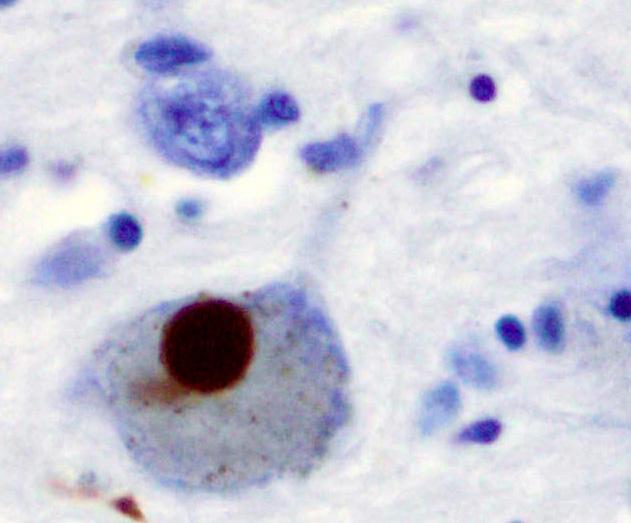 Eine bessere Testverfahren für Patienten mit Parkinson-Krankheit
