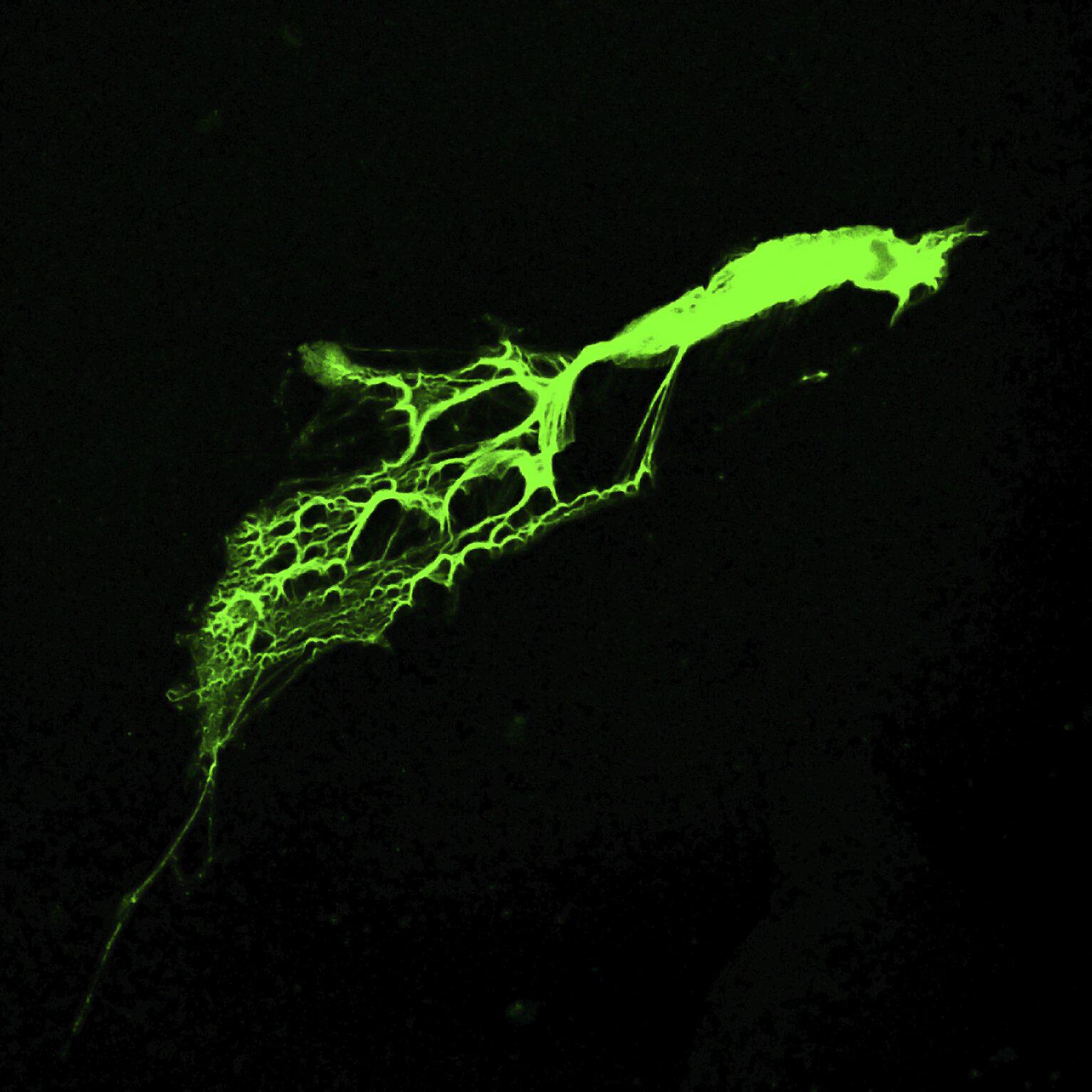 Neutrophile ausgestattet mit einem 'Abrüstung' – Programm, welches verhindert, dass das Immunsystem außer Kontrolle