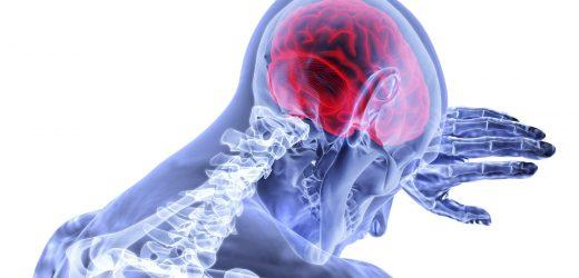 Gehirn ertrinkt in seiner eigenen Flüssigkeit nach einem Schlaganfall