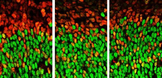 Gen im Zusammenhang mit Autismus, steuert auch das Wachstum des embryonalen Gehirns