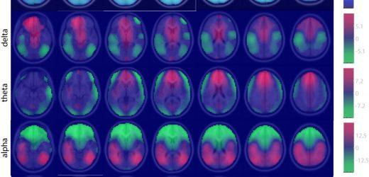 Armee entwickelt big-data-Ansatz in den Neurowissenschaften