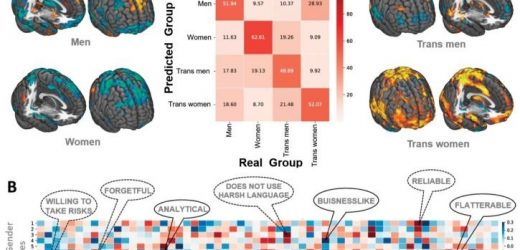 Machine-learning-Studie: mindestens neun Geschlecht Ausdrücke existieren im Gehirn