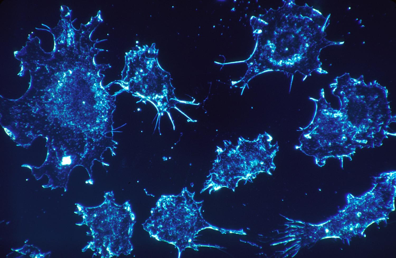 Forscher entdecken neuartige Rolle von spezifischen Histon-deacetylase in non-small cell lung cancer