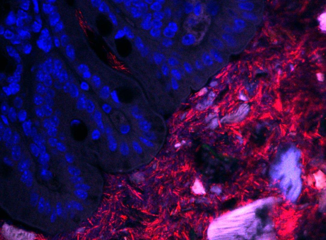 Mapping bakterielle Nachbarschaften in den Darm