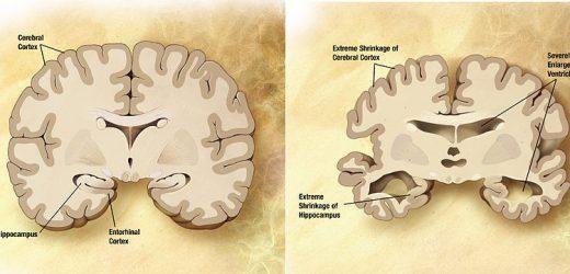 Gen-Variante Stäbe aus Alzheimer-Krankheit ist in einigen Menschen, Wissenschaftler finden