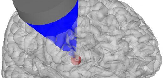 Forscher entdecken Ultraschall-Wellen können neue Behandlungen für Erkrankungen des Gehirns