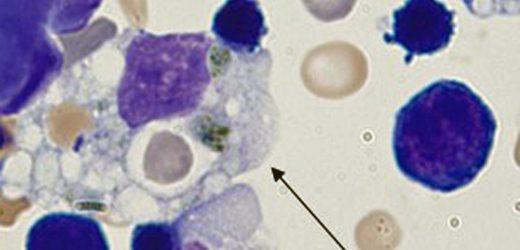 Forschungs-Punkte, um Behandlung für COVID-19 Zytokin-Stürme