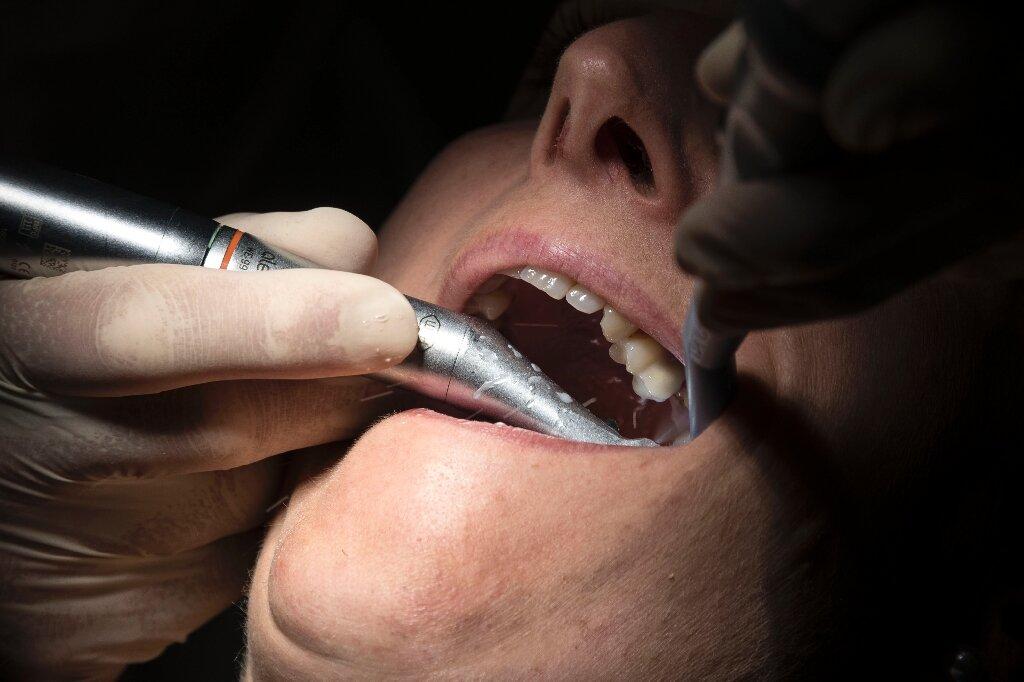 Virus lockdown zwingt Briten zu eigenen Zahnärzte