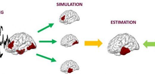 Neue bildgebende Methode tracks Gehirn ist schwer Netzwerke