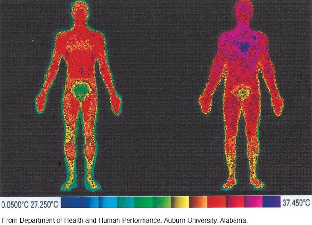 'Normale' menschliche Körpertemperatur ist ein Bereich um 98.6 F – a Physiologe erklärt, warum