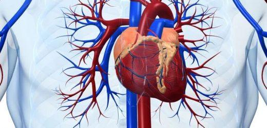 Patienten mit schwarzer tarif schlechter nach Angioplastie
