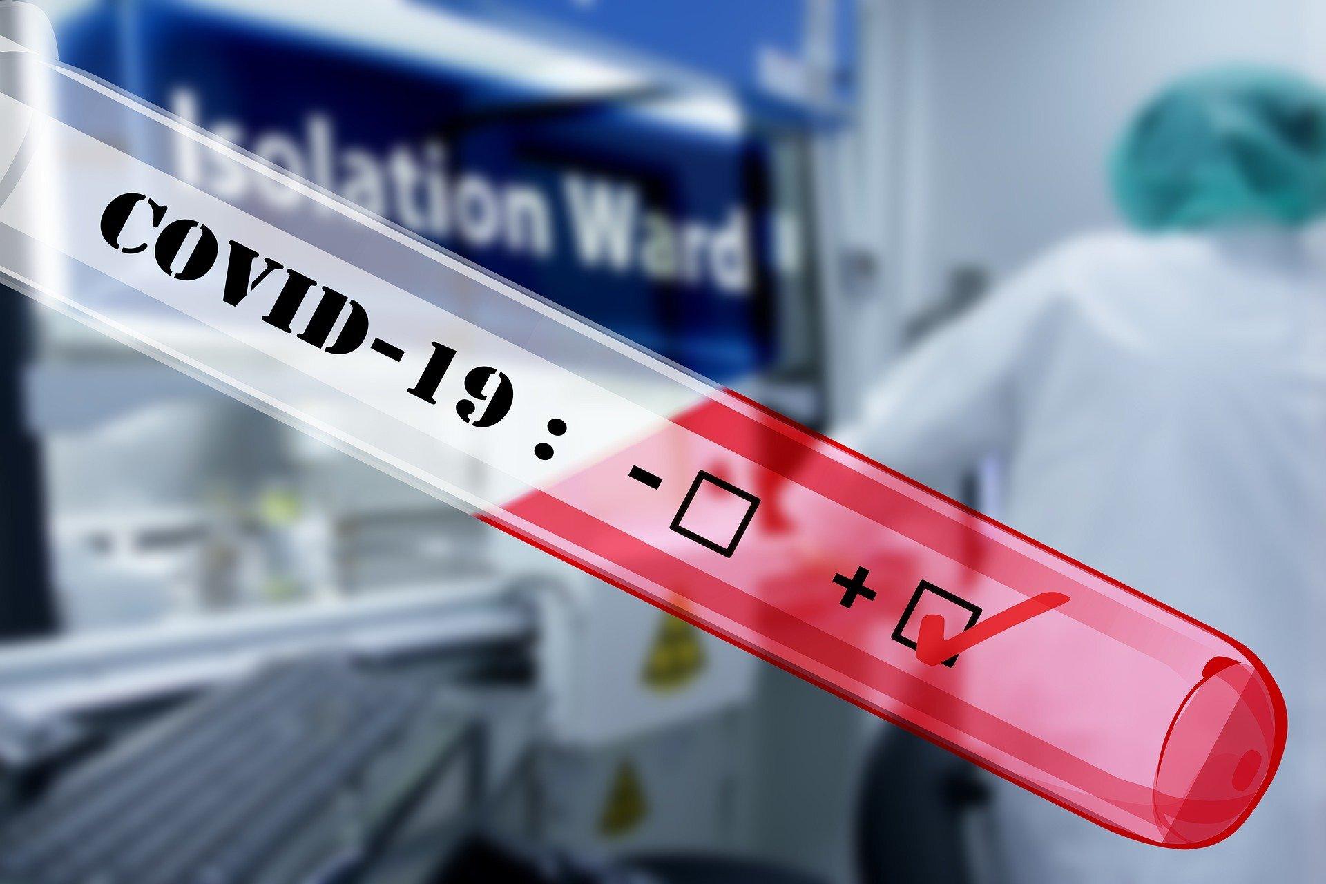 UNS zeichnet 43,742 neue virus-Fälle in 24 Stunden: tracker