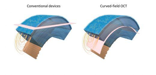 Forscher erfassen Zelle-level-details der gekrümmten Hornhaut