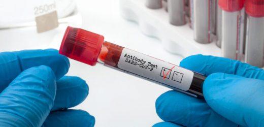 Coronavirus: Folgt auf SARS-CoV-2-Infektion doch keine Immunität? – Naturheilkunde & Naturheilverfahren Fachportal
