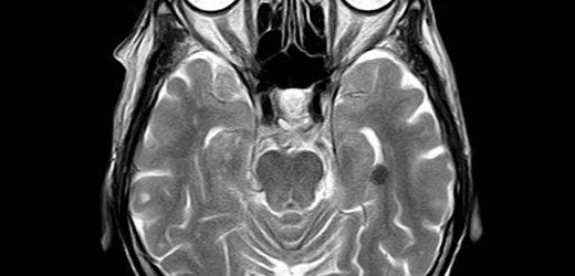 Medikamentöse stimulation der neuralen Stammzellen zu reparieren führt zu vielversprechenden Auswirkungen auf die Behandlung von Kindern mit Hirnverletzungen