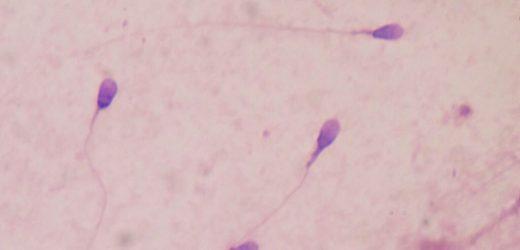 Übergewicht und Adipositas sind assoziiert mit einer niedrigen Spermien-Qualität